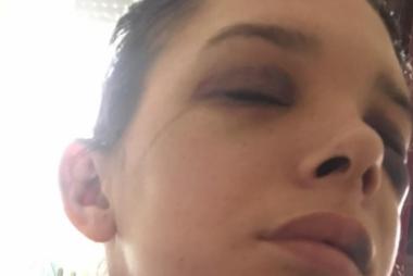 снимка, Албанец преби като животно бременна сръбкиня – отказала му секс (БРУТАЛНИ СНИМКИ 18+)