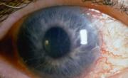 снимка, Глаукома – билките спасяващи от ослепяване
